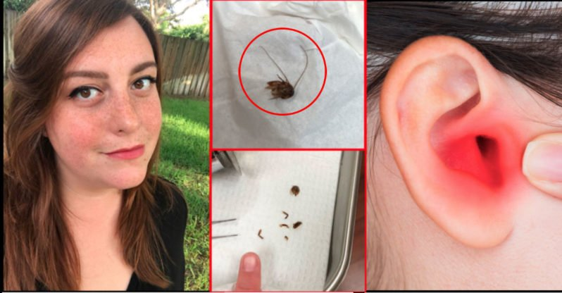 Doctors Pulled a Cockroach Out of Her Ear, but Her Nightmare Continued Nine Days Later